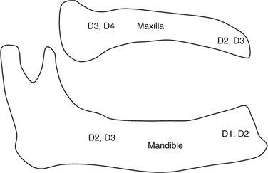 розташування зон різних типів щільності кістки