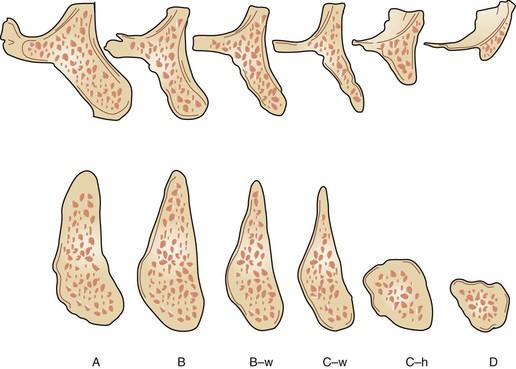 класифікація атрофій за Misch таJudy