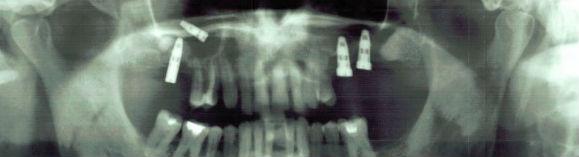 імплантат в гайморовій пазусі