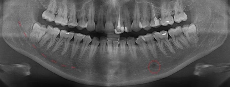 ортопантомограма