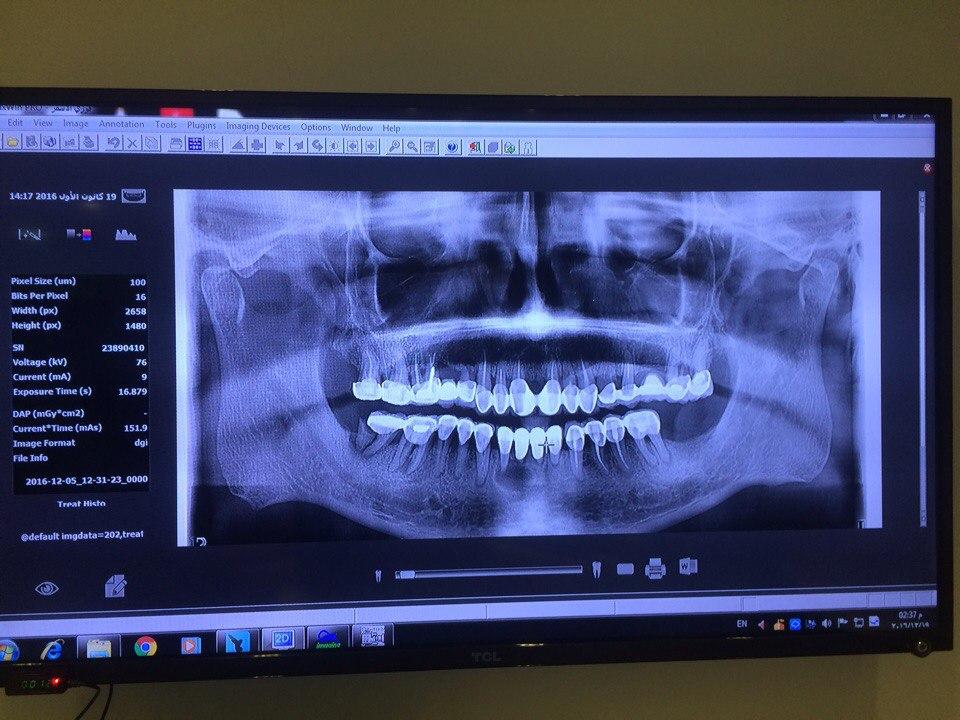 томографія