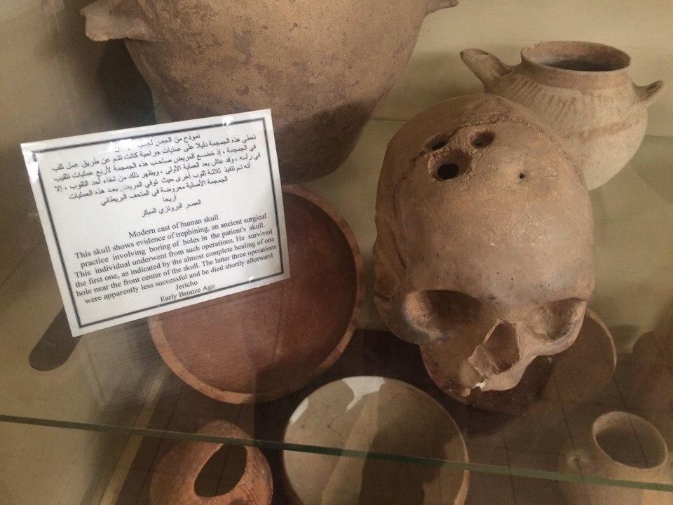 череп із трепанацією