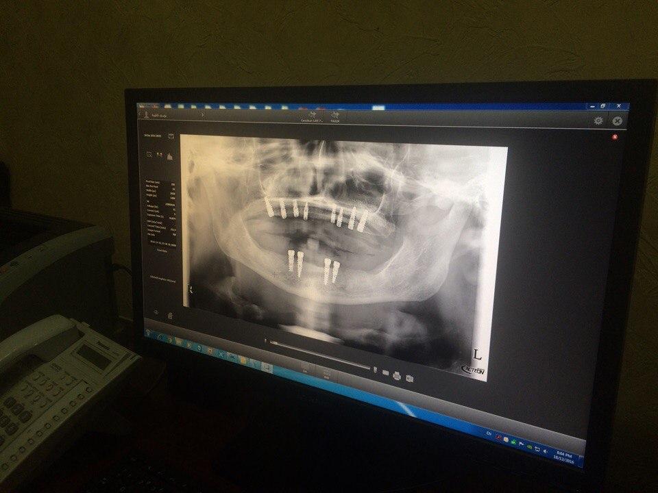 панорамний рентген пацієнта після синус-ліфтингів із субантральною аугментацією