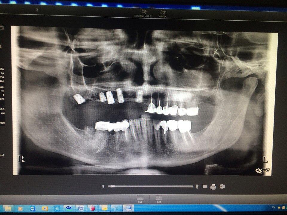 панорамна рентгенографія. стажування по імплантології