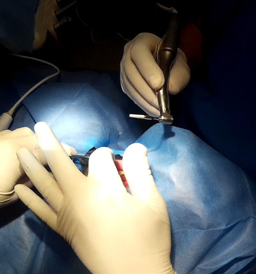 встановлення імплантату