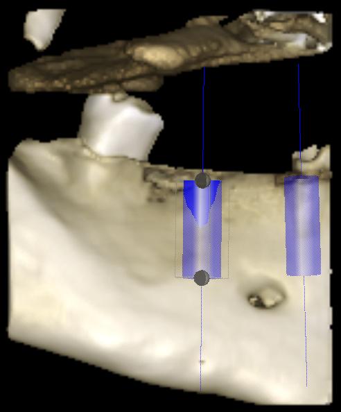 3D модель щелепи з імплантатами в ділянці 44 і 46