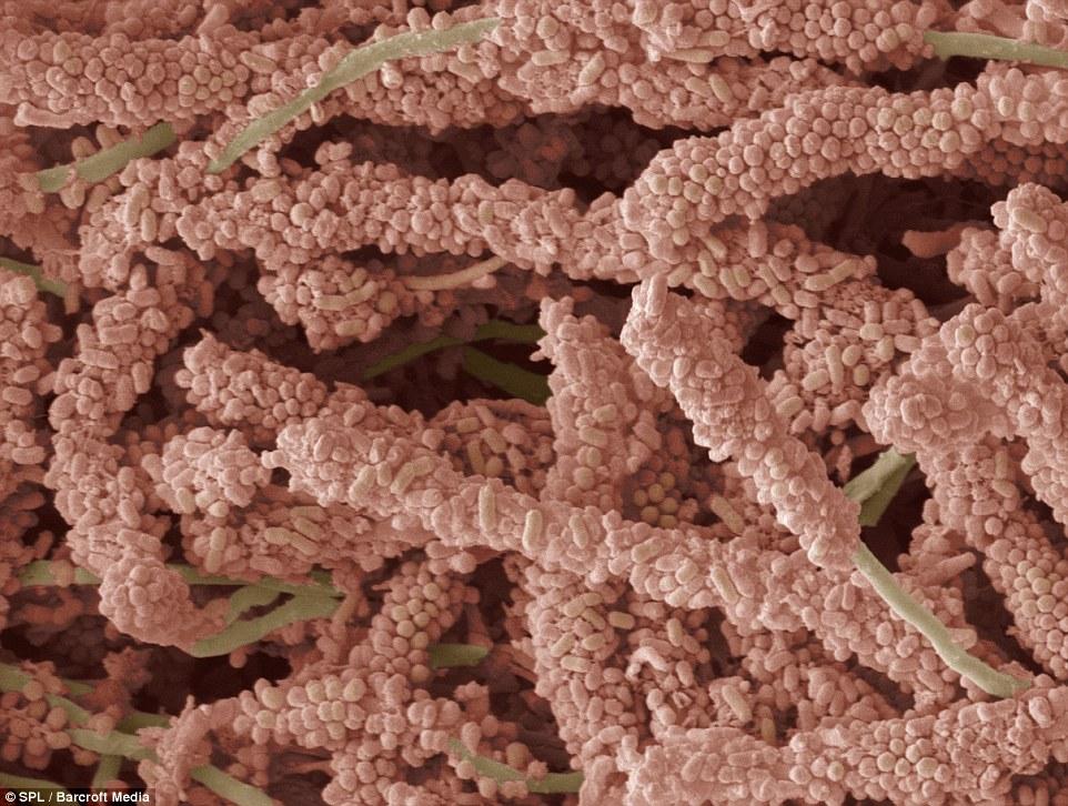 бактерії, які утворюють зубний наліт