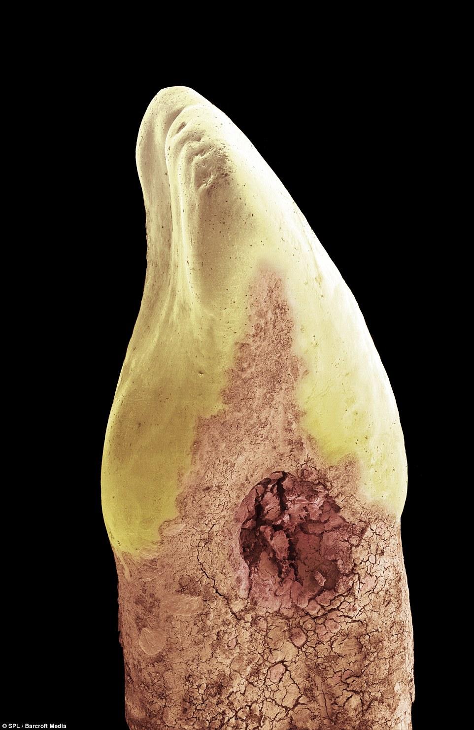 утворення каріозної порожнини