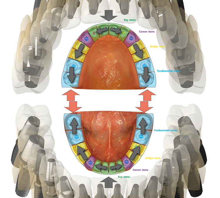 Мінімальна кількість імплантатів в залежності від типу протеза.