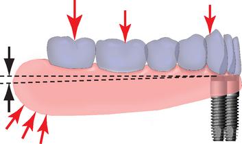 повний знімний протез з опорою на імплантати, фіксація повних знімних протезів з опорою на імплантати