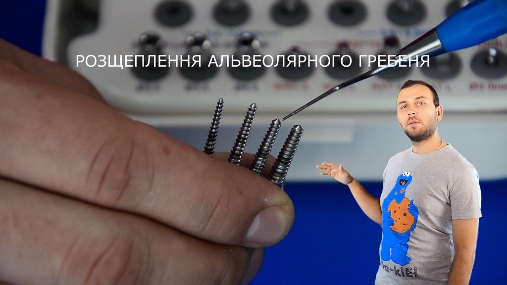 Розщеплення альвеолярного гребеня