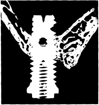 Перфорація імплантатами мембрани Шнайдера