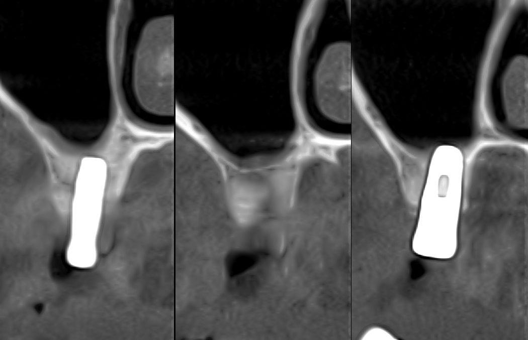 Встановлення імплантатів із перфорацією мембрани Шнайдера. Клінічний випадок