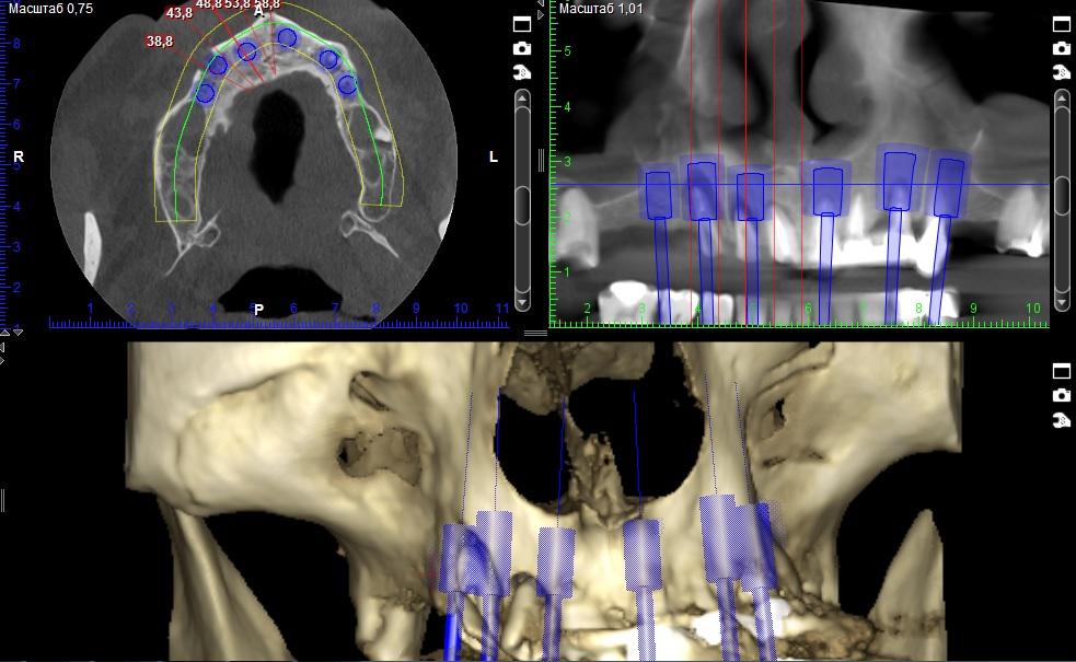 Видалення 13-24 та одномоментна імплантація. Клінічний випадок