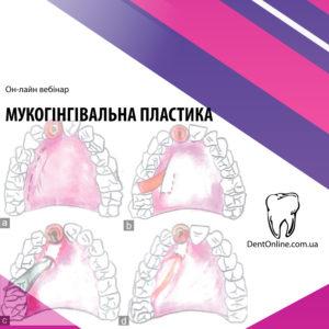 вебінар по імплантології