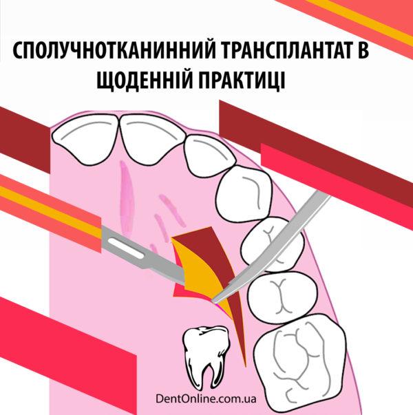 сполучнотканинний трансплантат