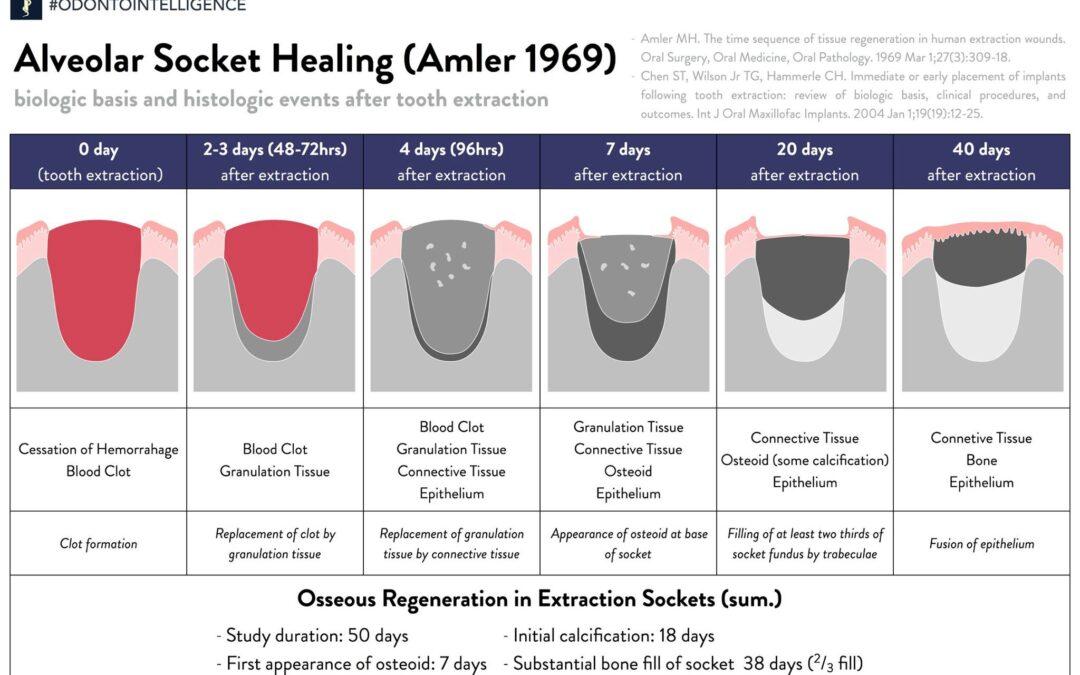 Як загоюється лунка після видалення зуба ? Уривок вебінару