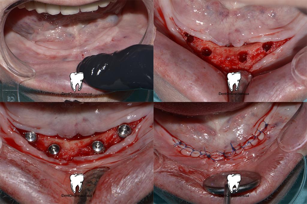 встановлення імплантатів