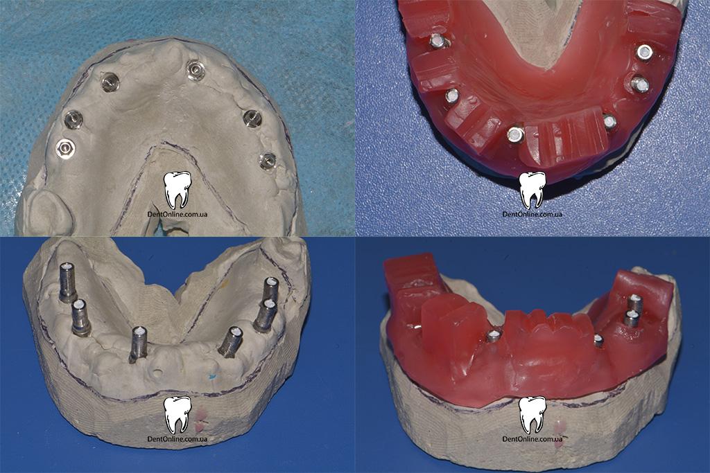 протезування на імплантатах