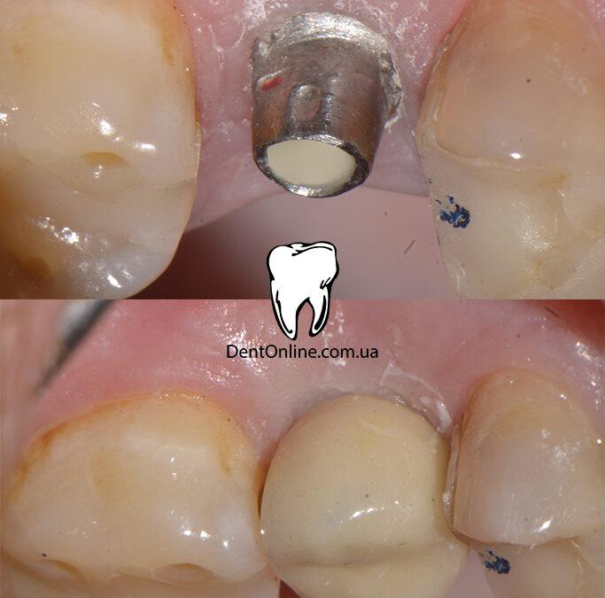 Виготовлення металокерамічної коронки на 15 зуб. Завершення лікування. Клінічний випадок